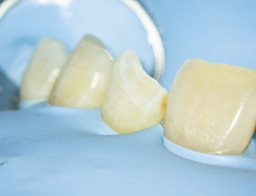 Zahnärztliche Praxis in Zeiten von Corona – ein neuer Blick auf die Vorteile des Kofferdams