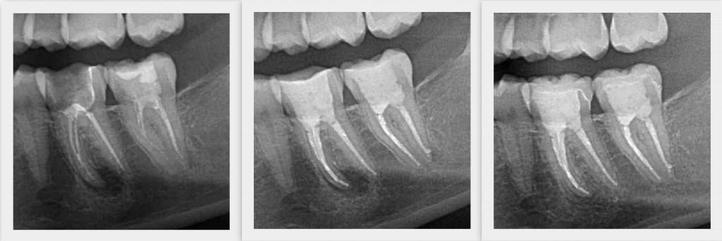 1. Bild: Beherdete Zähne 37, 36 | 2. Bild: Zustand nach Wurzelfüllung | 3. Bild: Kontrolle nach sechs Monaten, vollständige Knochenrückbildung