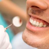 Mikroskopische Endodontie – Ablauf einer Wurzelkanalbehandlung