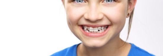 Faktencheck: Mundspülungen