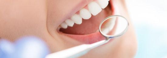 Die professionelle Zahnreinigeung