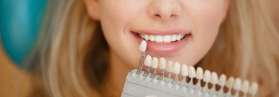 Zahnbleaching: Worauf ist zu achten?