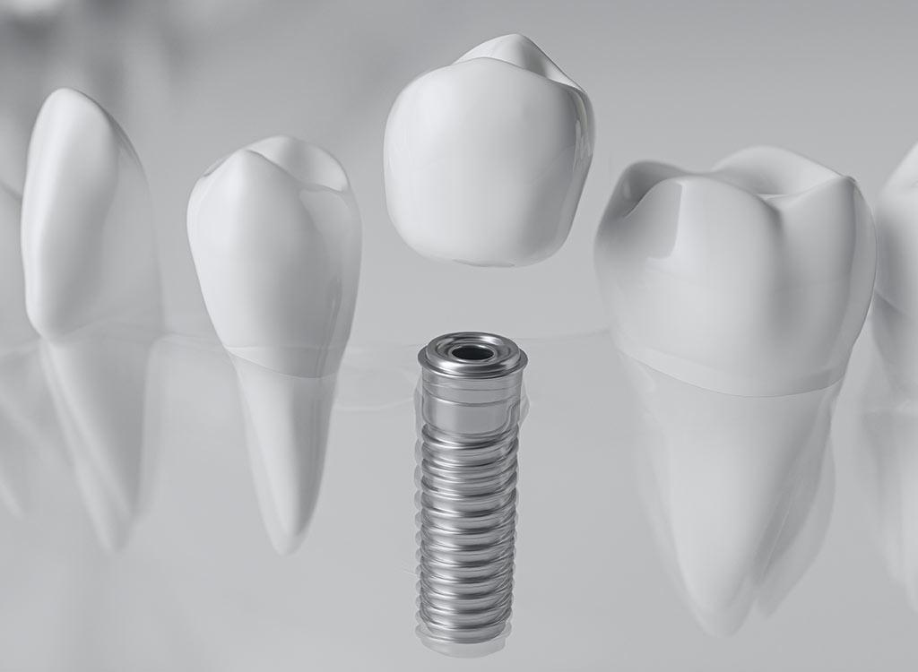 Zahnimplantat im Verbund und Vergleich mit echten Zähnen
